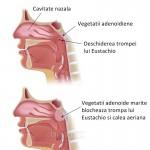 Adenoidita (vegetatii adenoide) la copii